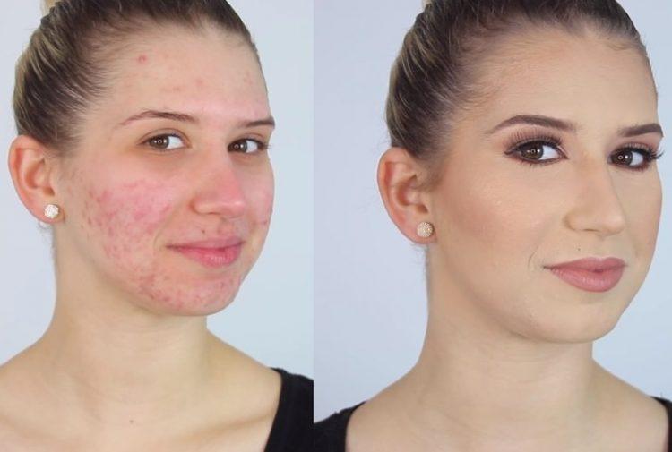 ¿Cómo maquillar la piel con acné?